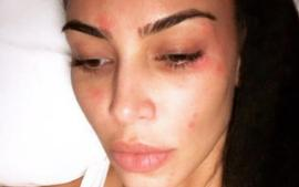 Kim Kardashian Shares New Pic Of Psoriasis As She Continues To Battle With The Skin Condition