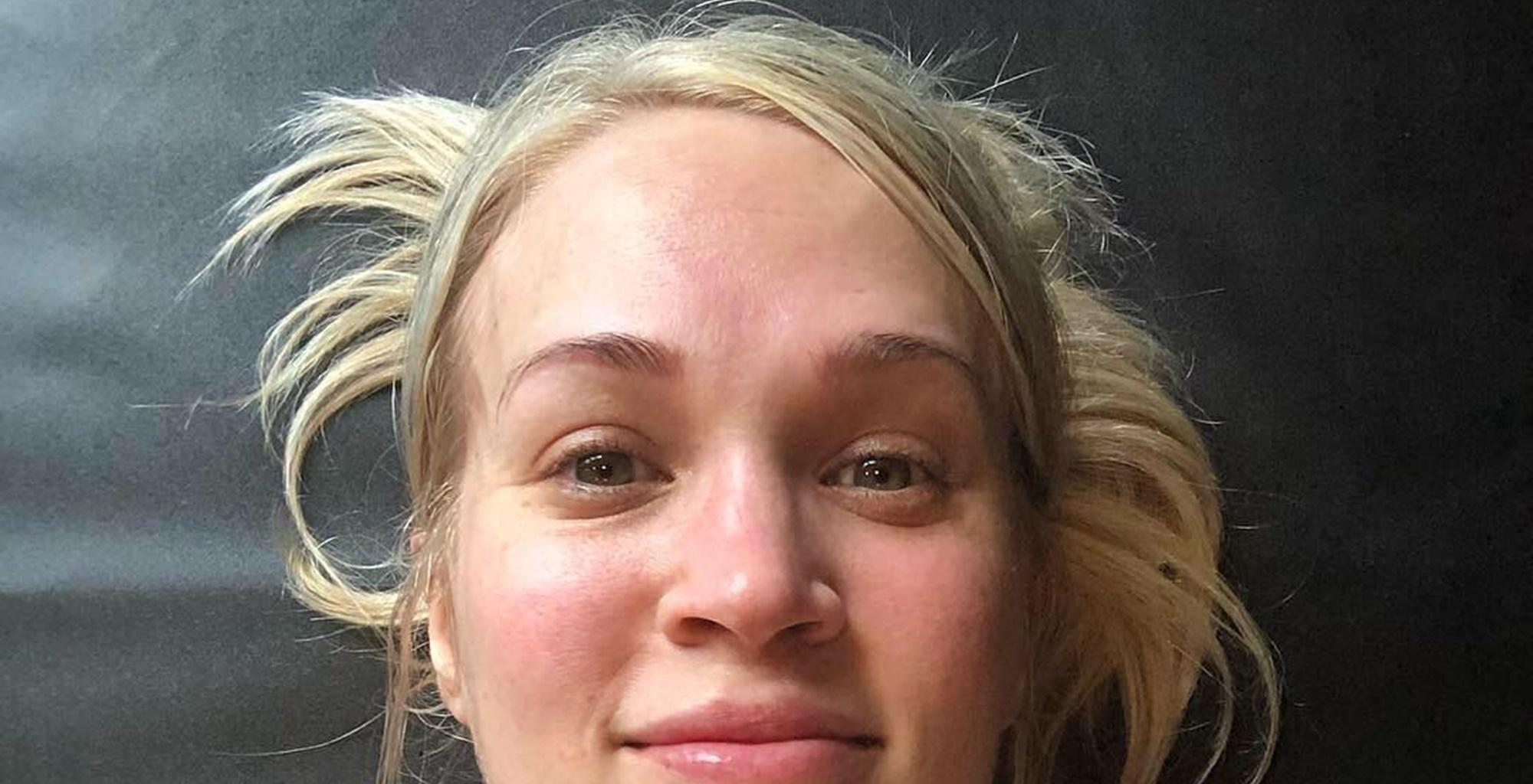 Carrie Underwood Shares Photo Without Makeup Showing Her Scar As She Reveals Weight Struggle After Giving Birth