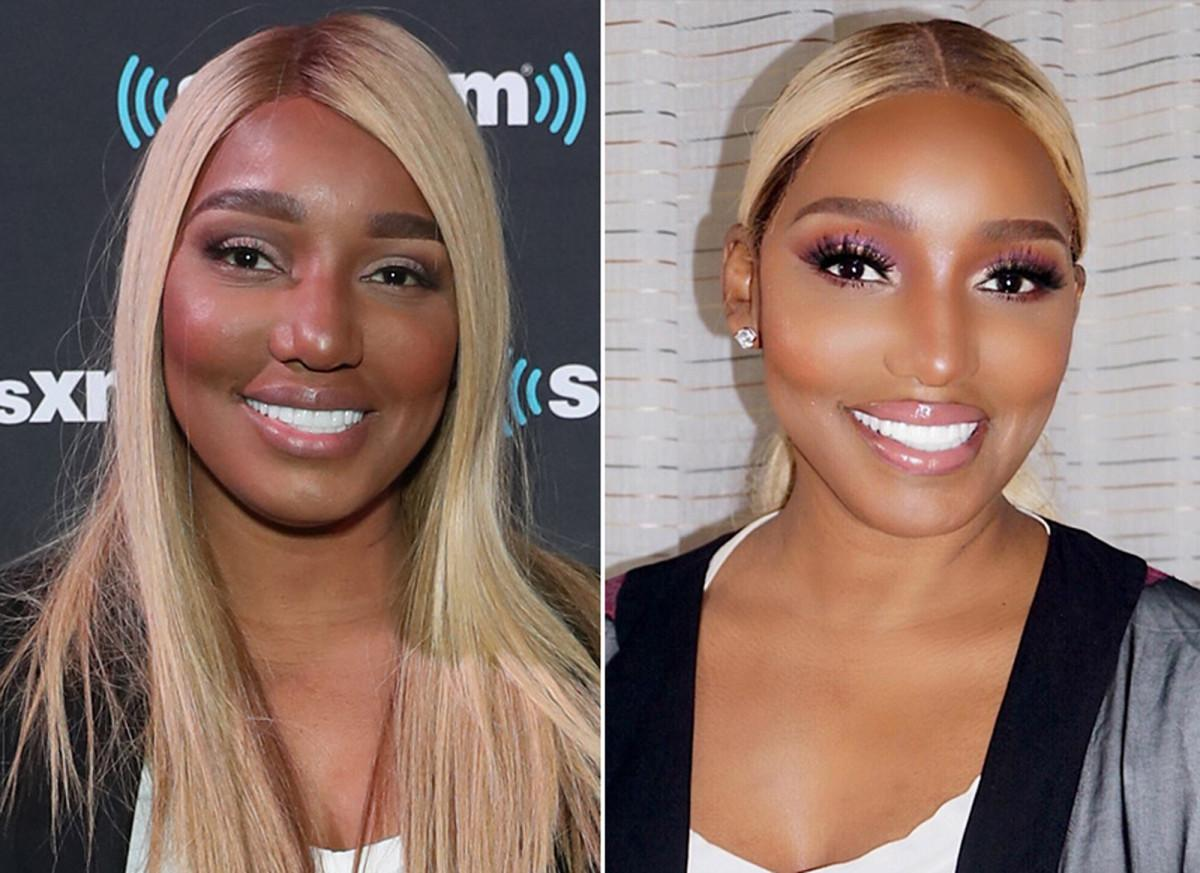 NeNe Leakes Mocked After Posting Pic That Looks Like A Photoshop Fail Or Like She Had Too Much Plastic Surgery!