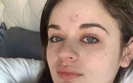 Patricia Arquette Accidentally Injures Her The Act Co-Star Joey King With Golden Globe Trophy