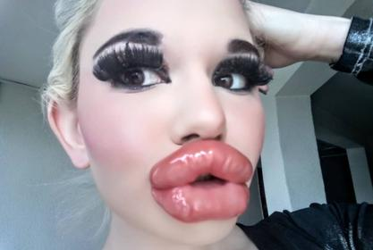 Andrea Ivanova Goes Viral After Getting 20 Lip Injections — Real Life Barbie Wants The Biggest Lips In The World