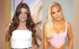 Plastic Surgeon Weighs In On Khloe Kardashian's Before And After Photos— Talks Procedures She May Have Had