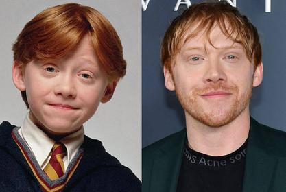 Rupert Grint Admits It Felt 'Suffocating' Shooting 'Harry Potter' For 10 Uninterrupted Years!