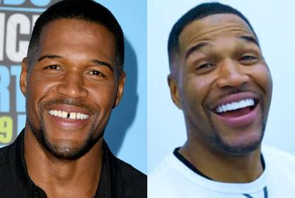 Michael Strahan Gets Rid Of His Iconic Tooth Gap - Check Out The Video!